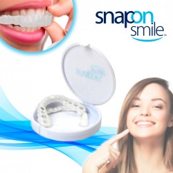 Snap On Smile instantanés
